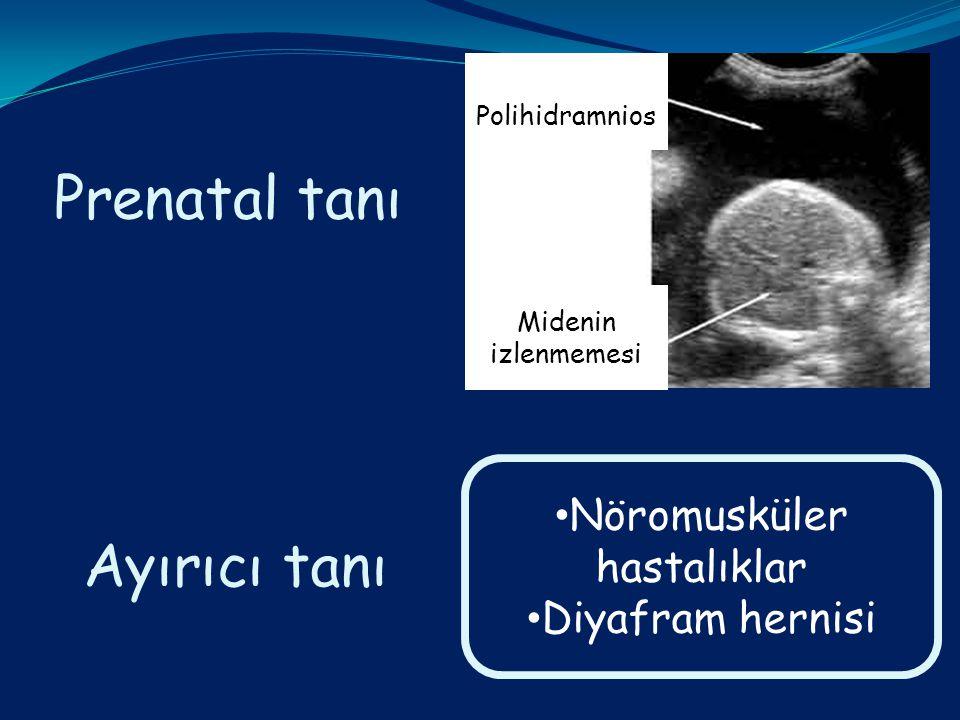 Prenatal tanı Midenin izlenmemesi Küçük Polihidramnios Ayırıcı tanı Nöromusküler hastalıklar Diyafram hernisi