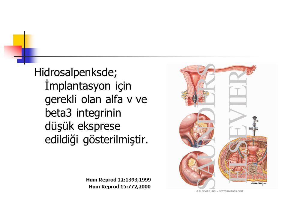 Hidrosalpenksde; İmplantasyon için gerekli olan alfa v ve beta3 integrinin düşük eksprese edildiği gösterilmiştir. Hum Reprod 12:1393,1999 Hum Reprod