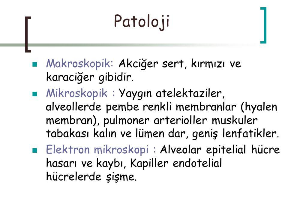 Patoloji Makroskopik: Akciğer sert, kırmızı ve karaciğer gibidir. Mikroskopik : Yaygın atelektaziler, alveollerde pembe renkli membranlar (hyalen memb