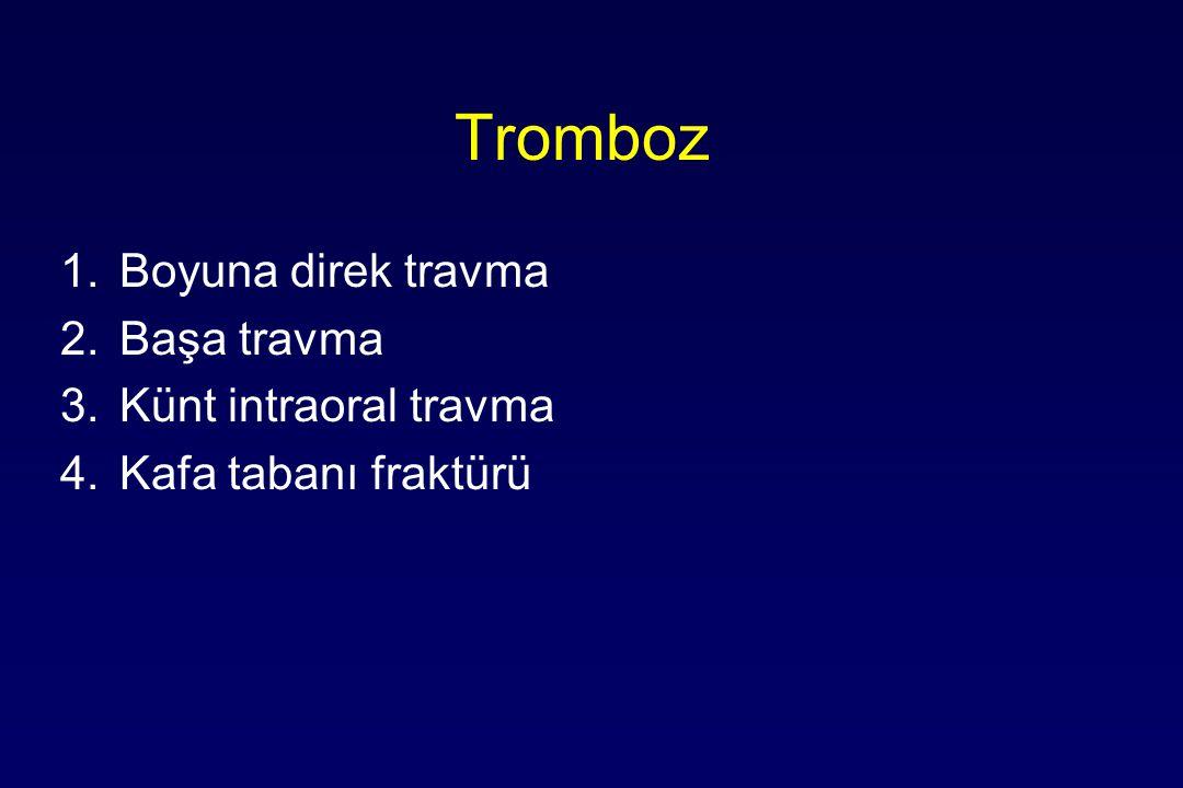 Tromboz 1.Boyuna direk travma 2.Başa travma 3.Künt intraoral travma 4.Kafa tabanı fraktürü