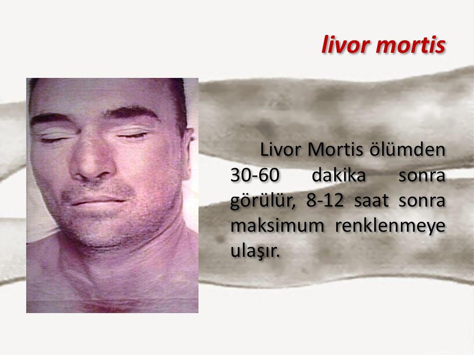 livor mortis Livor Mortis ölümden 30-60 dakika sonra görülür, 8-12 saat sonra maksimum renklenmeye ulaşır. Livor Mortis ölümden 30-60 dakika sonra gör