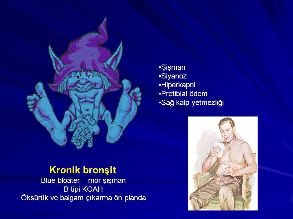 Kronik bronşit Blue bloater – mor şişman B tipi KOAH Öksürük ve balgam çıkarma ön planda Şişman Siyanoz Hiperkapni Pretibial ödem Sağ kalp yetmezliği