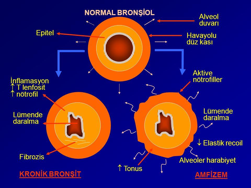 NORMAL BRONŞİOL KRONİK BRONŞİT AMFİZEM Alveol duvarı Epitel Havayolu düz kası İnflamasyon  T lenfosit  nötrofil Lümende daralma Fibrozis Alveoler ha