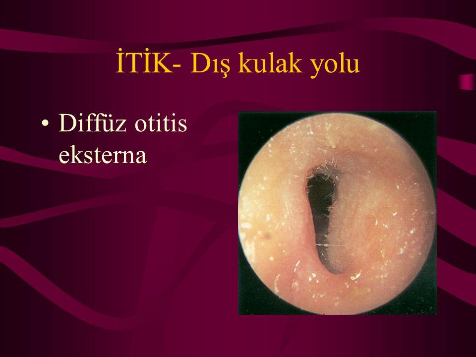 İTİK- Dış kulak yolu Diffüz otitis eksterna