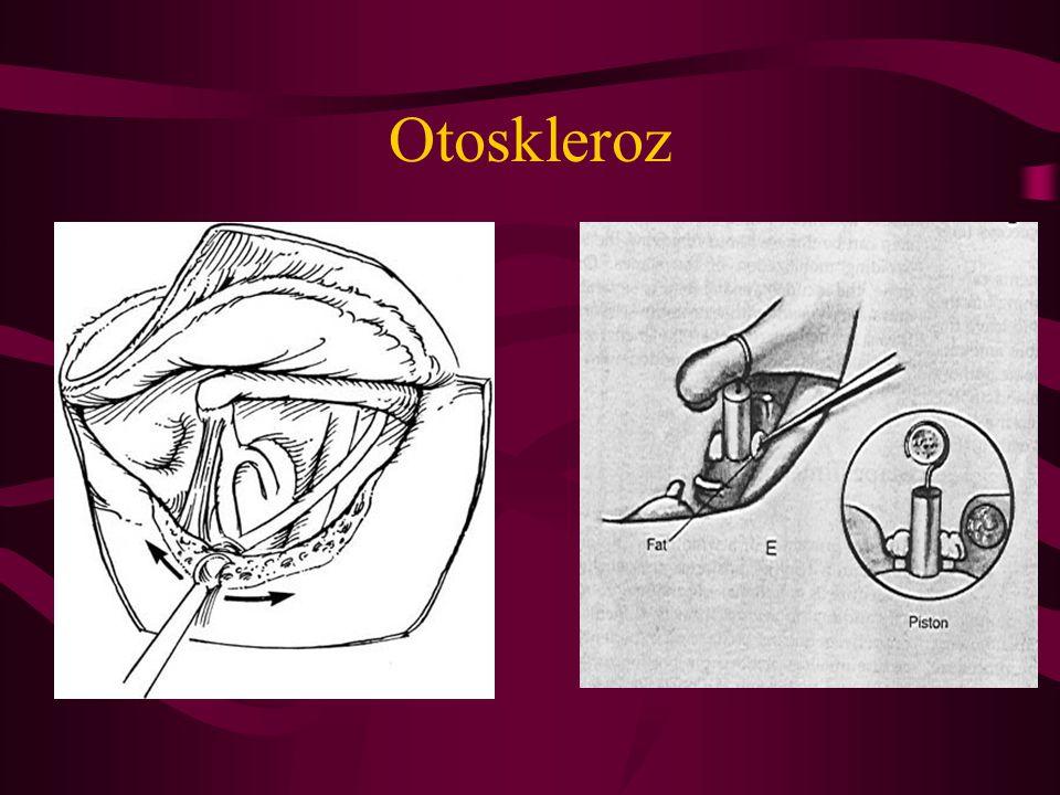 Otoskleroz