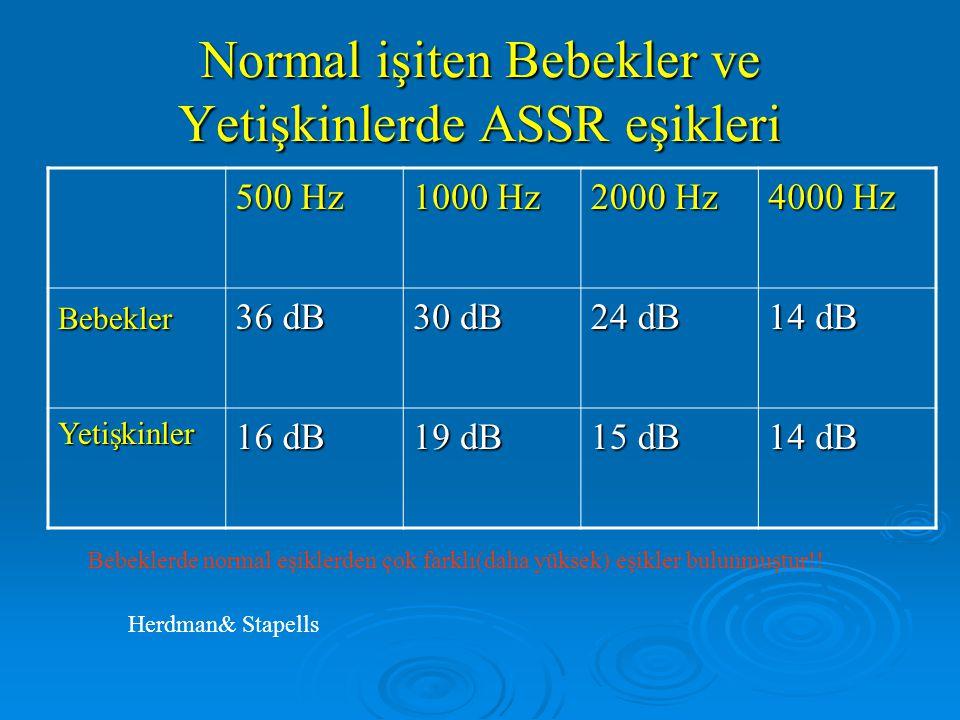 ASSR'nin Sorunları PEKİ YA BİZ?? Normal İşiten Bebekler