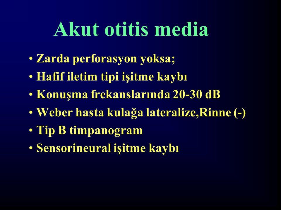 Akut otitis media Zarda perforasyon yoksa; Hafif iletim tipi işitme kaybı Konuşma frekanslarında 20-30 dB Weber hasta kulağa lateralize,Rinne (-) Tip