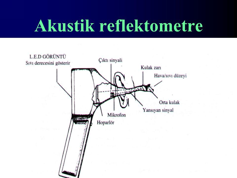 Akustik reflektometre