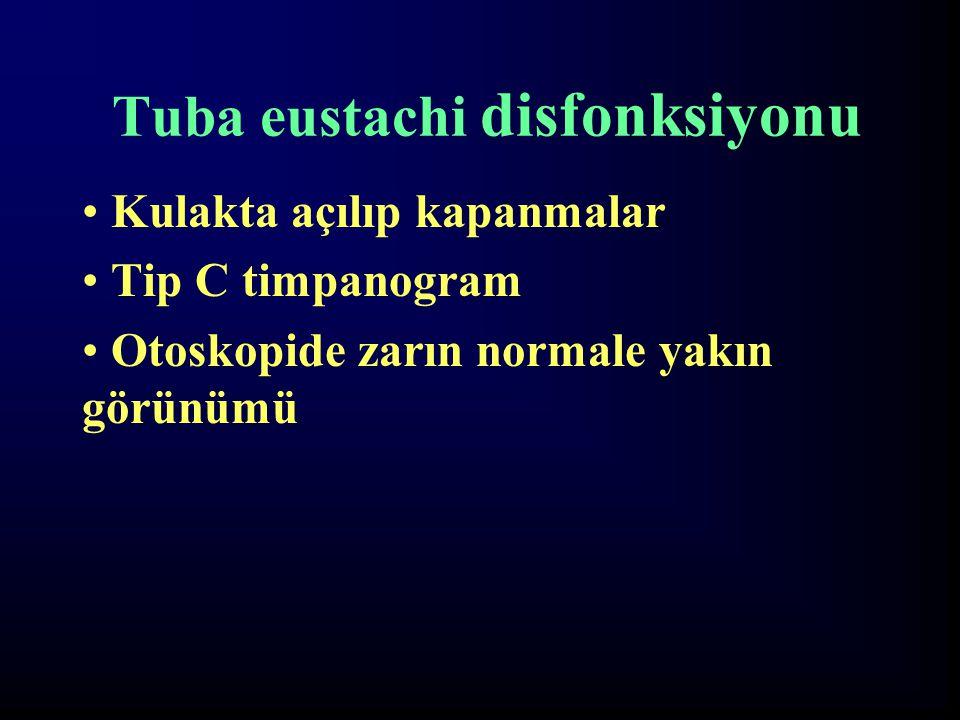 Tuba eustachi disfonksiyonu Kulakta açılıp kapanmalar Tip C timpanogram Otoskopide zarın normale yakın görünümü
