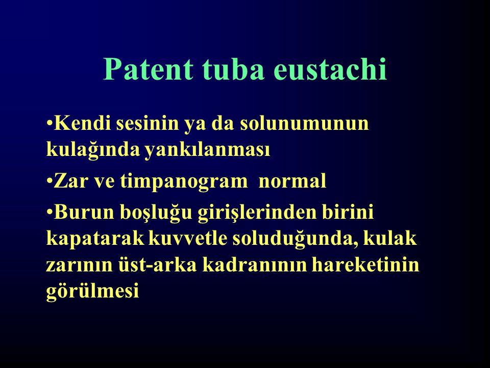 Patent tuba eustachi Kendi sesinin ya da solunumunun kulağında yankılanması Zar ve timpanogram normal Burun boşluğu girişlerinden birini kapatarak kuv