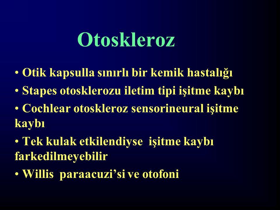 Otoskleroz Otik kapsulla sınırlı bir kemik hastalığı Stapes otosklerozu iletim tipi işitme kaybı Cochlear otoskleroz sensorineural işitme kaybı Tek ku