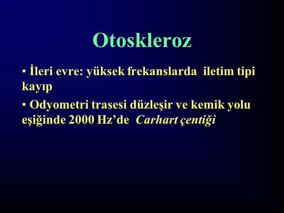 Otoskleroz İleri evre: yüksek frekanslarda iletim tipi kayıp Odyometri trasesi düzleşir ve kemik yolu eşiğinde 2000 Hz'de Carhart çentiği