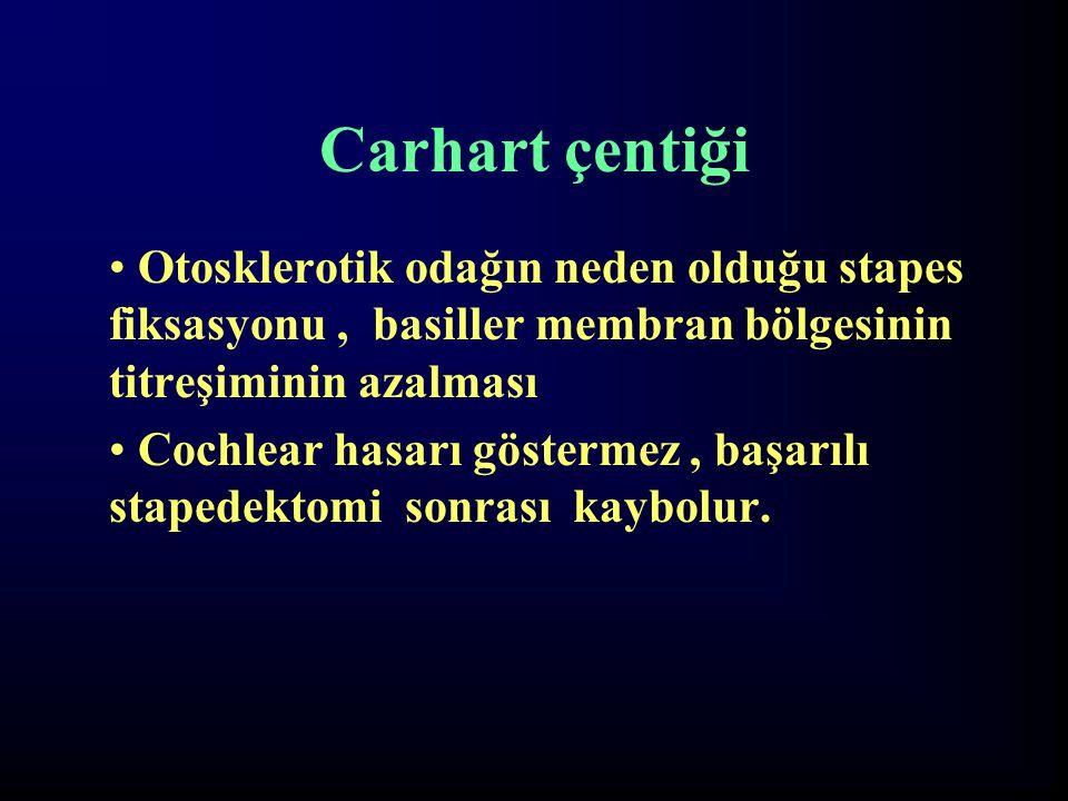 Carhart çentiği Otosklerotik odağın neden olduğu stapes fiksasyonu, basiller membran bölgesinin titreşiminin azalması Cochlear hasarı göstermez, başar