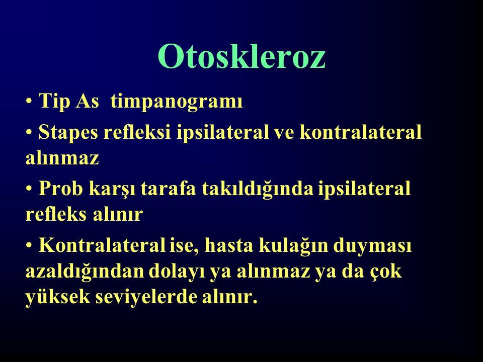 Otoskleroz Tip As timpanogramı Stapes refleksi ipsilateral ve kontralateral alınmaz Prob karşı tarafa takıldığında ipsilateral refleks alınır Kontrala