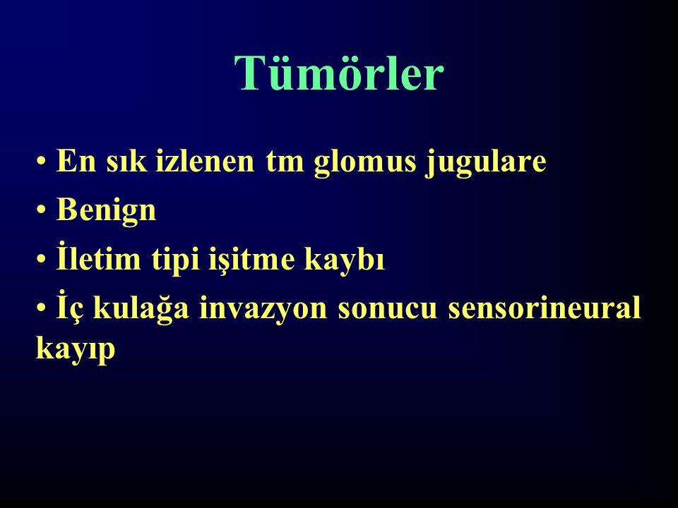 Tümörler En sık izlenen tm glomus jugulare Benign İletim tipi işitme kaybı İç kulağa invazyon sonucu sensorineural kayıp