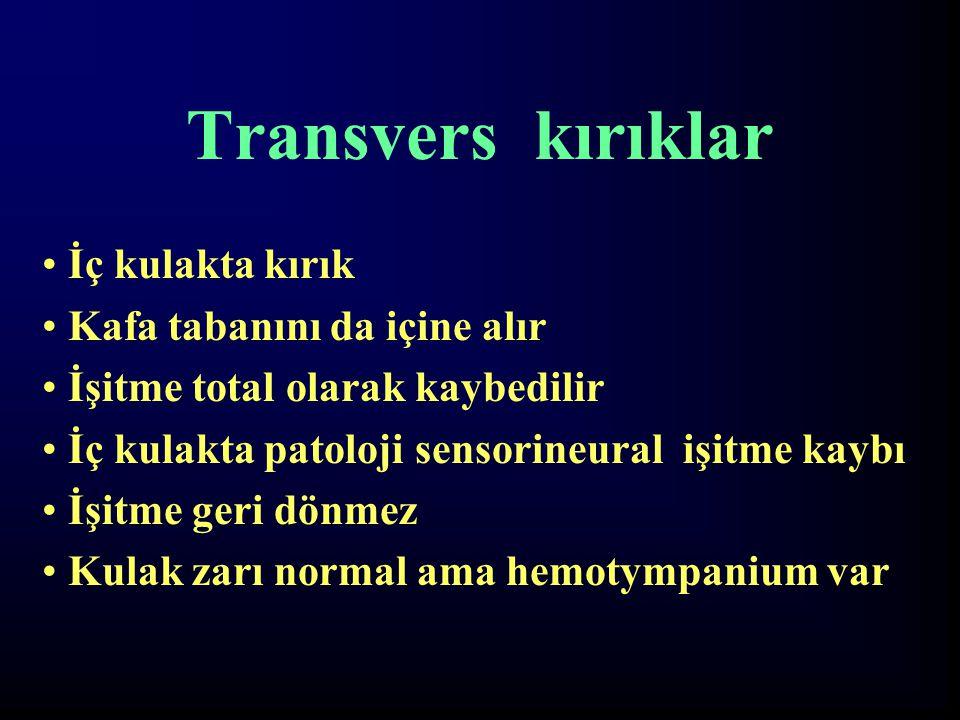 Transvers kırıklar İç kulakta kırık Kafa tabanını da içine alır İşitme total olarak kaybedilir İç kulakta patoloji sensorineural işitme kaybı İşitme g