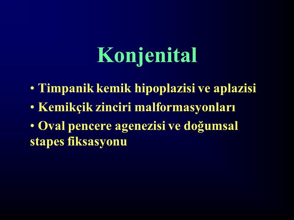 Konjenital Timpanik kemik hipoplazisi ve aplazisi Kemikçik zinciri malformasyonları Oval pencere agenezisi ve doğumsal stapes fiksasyonu