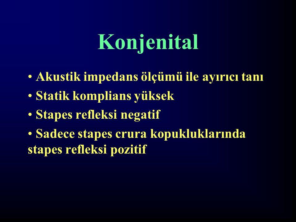 Konjenital Akustik impedans ölçümü ile ayırıcı tanı Statik komplians yüksek Stapes refleksi negatif Sadece stapes crura kopukluklarında stapes refleks