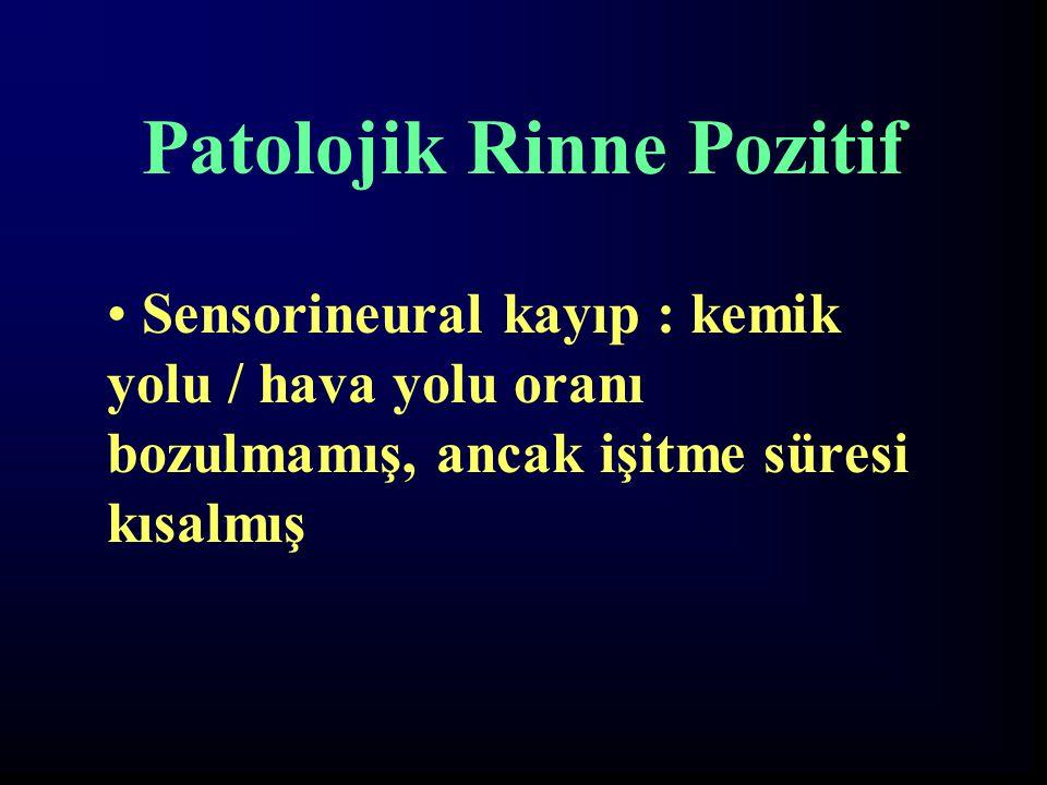 Patolojik Rinne Pozitif Sensorineural kayıp : kemik yolu / hava yolu oranı bozulmamış, ancak işitme süresi kısalmış