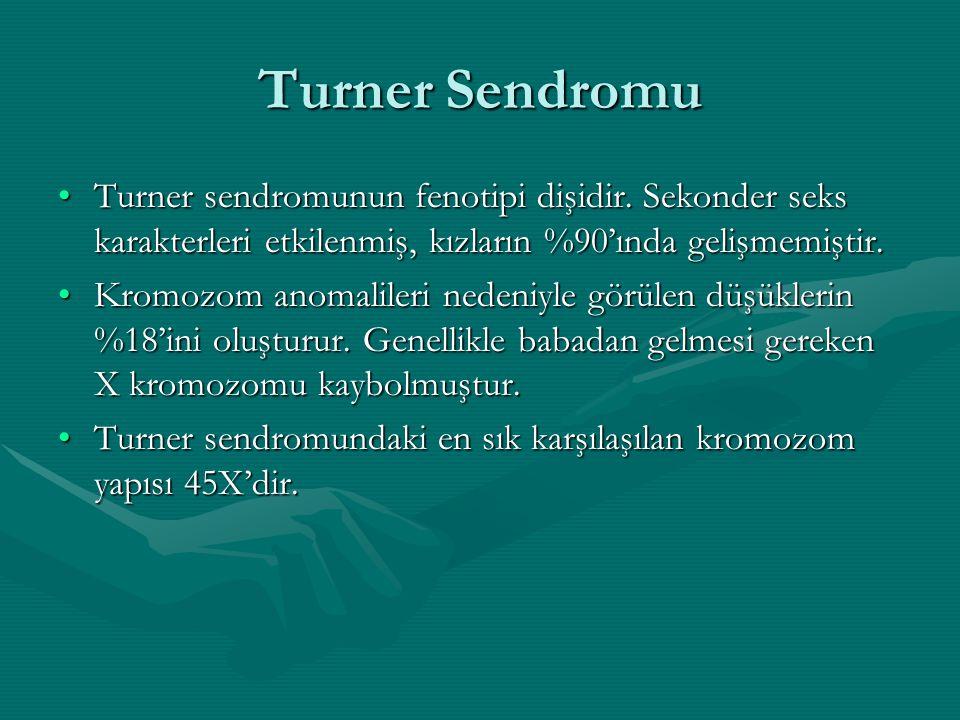 Turner Sendromu Turner sendromunun fenotipi dişidir. Sekonder seks karakterleri etkilenmiş, kızların %90'ında gelişmemiştir.Turner sendromunun fenotip