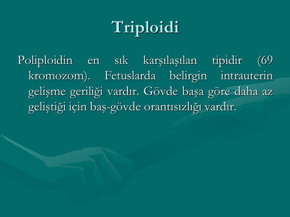 Triploidi Poliploidin en sık karşılaşılan tipidir (69 kromozom). Fetuslarda belirgin intrauterin gelişme geriliği vardır. Gövde başa göre daha az geli