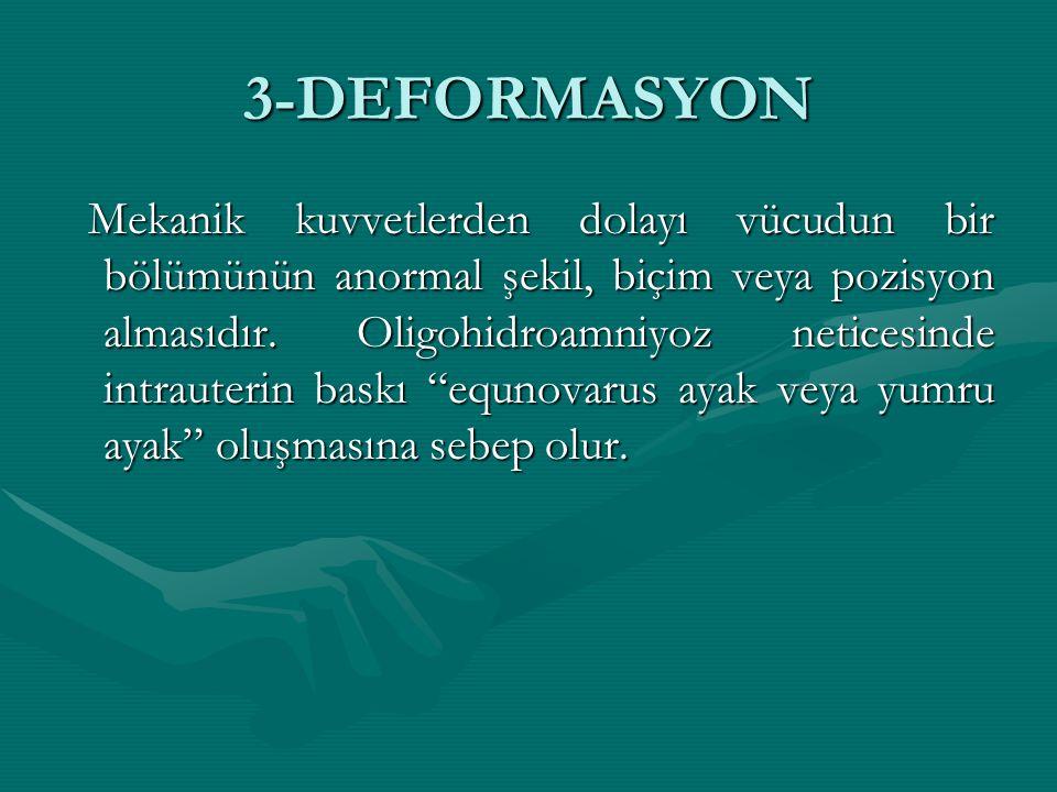 3-DEFORMASYON Mekanik kuvvetlerden dolayı vücudun bir bölümünün anormal şekil, biçim veya pozisyon almasıdır. Oligohidroamniyoz neticesinde intrauteri