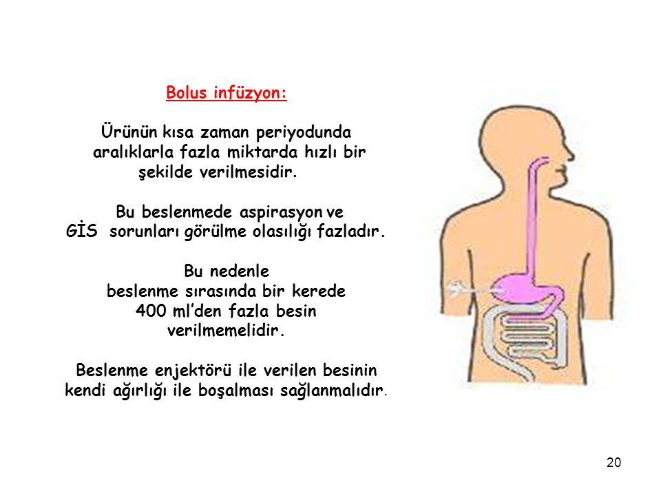 20 Bolus infüzyon: Ürünün kısa zaman periyodunda aralıklarla fazla miktarda hızlı bir şekilde verilmesidir. Bu beslenmede aspirasyon ve GİS sorunları