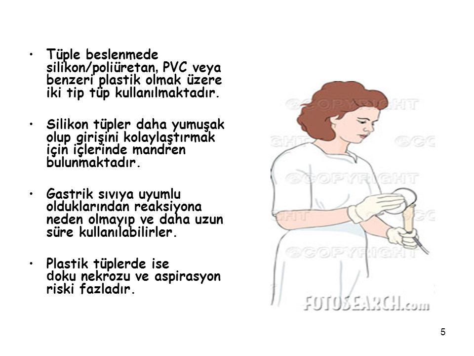 5 Tüple beslenmede silikon/poliüretan, PVC veya benzeri plastik olmak üzere iki tip tüp kullanılmaktadır. Silikon tüpler daha yumuşak olup girişini ko