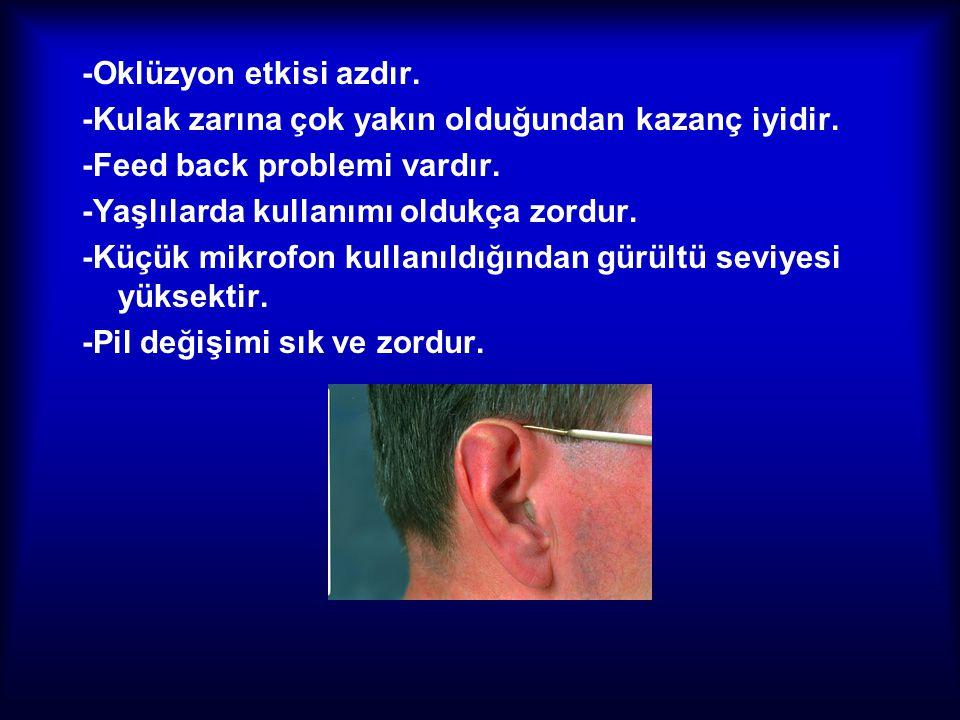 -Oklüzyon etkisi azdır. -Kulak zarına çok yakın olduğundan kazanç iyidir. -Feed back problemi vardır. -Yaşlılarda kullanımı oldukça zordur. -Küçük mik