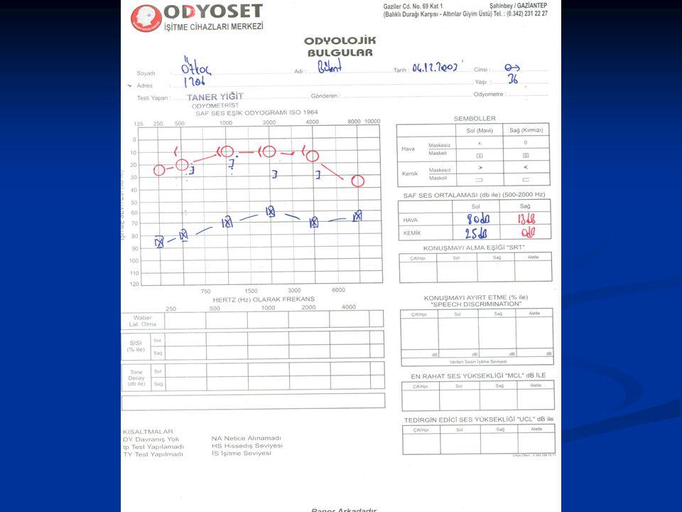 Hava Yolu Maskeleme Formülü Hava yolu maskeleme şu şekilde yapılır: ►Minimum maskeleme seviyesi: Test edilen kulağın hava yolu eşiği (dB)- 40+(karşı k