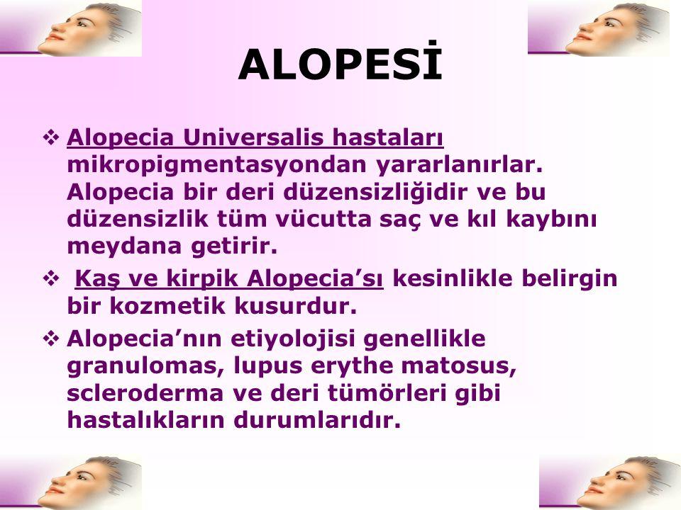ALOPESİ  Alopecia Universalis hastaları mikropigmentasyondan yararlanırlar. Alopecia bir deri düzensizliğidir ve bu düzensizlik tüm vücutta saç ve kı