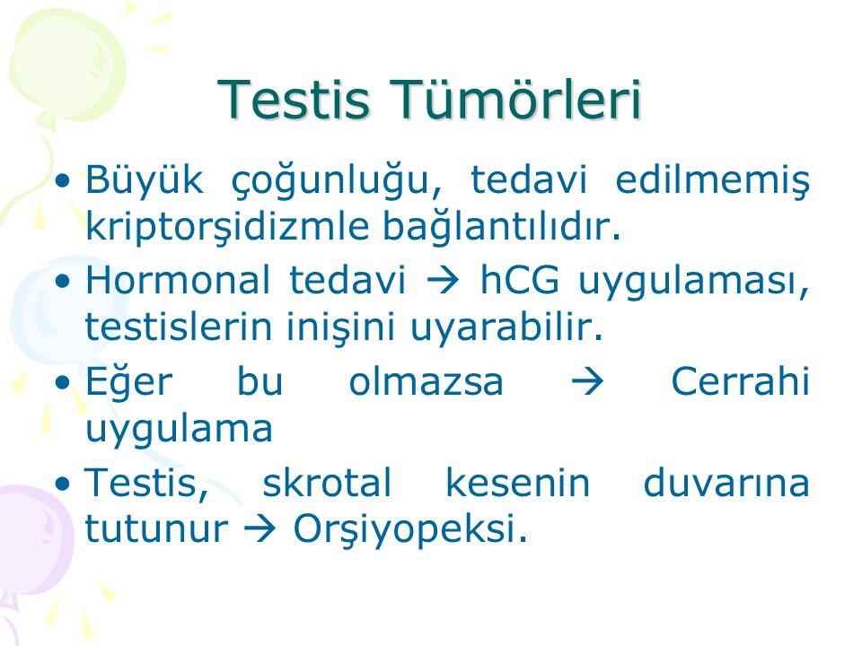 Testis Tümörleri Büyük çoğunluğu, tedavi edilmemiş kriptorşidizmle bağlantılıdır. Hormonal tedavi  hCG uygulaması, testislerin inişini uyarabilir. Eğ