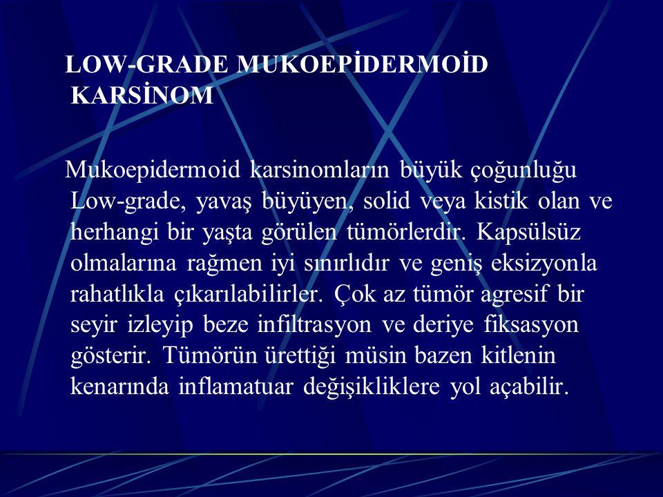 HIGH-GRADE TÜMÖRLER HIGH-GRADE MUKOEPİDERMOİD KARSİNOM: Mukoepidermoid karsinomların az bir kısmı çok agresif bir davranış gösterir.