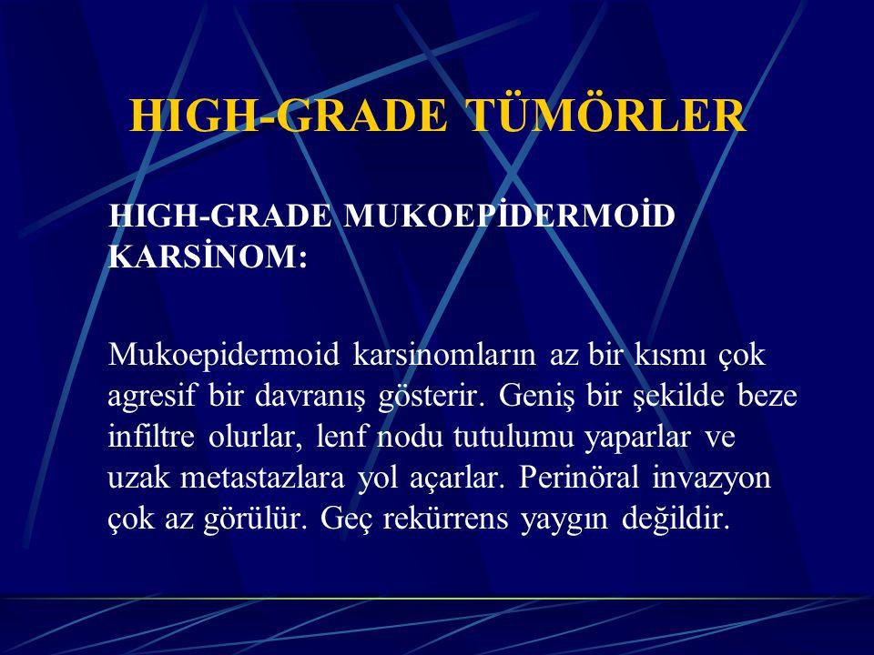 ADENOKARSİNOM: Günümüzde saptanmış tüm tükürük bezi tümörlerinin % 14 'ü adenokarsinomdur Bunların % 50 'sinden fazlası parotistedir.