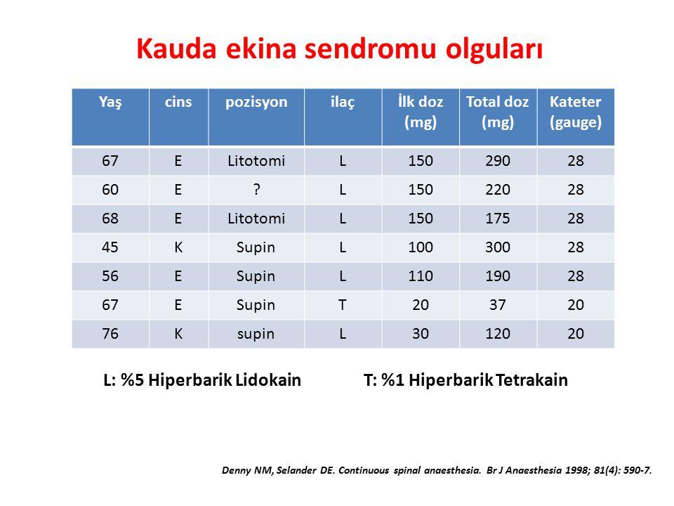 Yaşcinspozisyonilaçİlk doz (mg) Total doz (mg) Kateter (gauge) 67ELitotomiL15029028 60E?L15022028 68ELitotomiL15017528 45KSupinL10030028 56ESupinL11019028 67ESupinT203720 76KsupinL3012020 L: %5 Hiperbarik LidokainT: %1 Hiperbarik Tetrakain Kauda ekina sendromu olguları Denny NM, Selander DE.