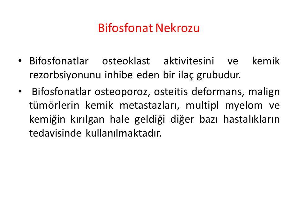 Bifosfonat Nekrozu Bifosfonatlar osteoklast aktivitesini ve kemik rezorbsiyonunu inhibe eden bir ilaç grubudur. Bifosfonatlar osteoporoz, osteitis def