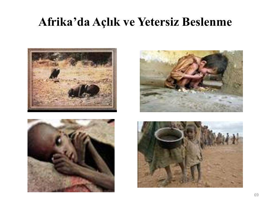 Afrika'da Açlık ve Yetersiz Beslenme 69
