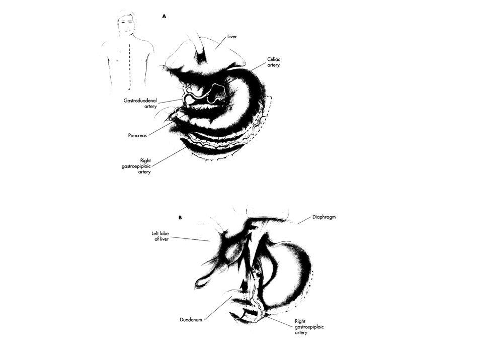 Endikasyonları; Reoperasyonlar Kalsifiye A.Aorta Genç hastalar