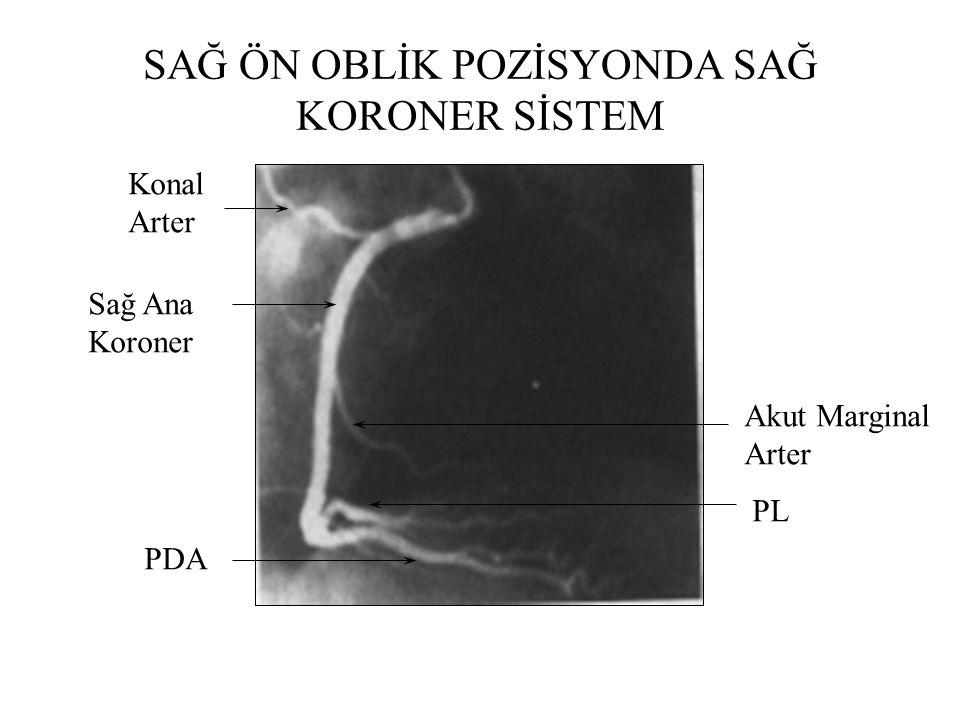SAĞ ÖN OBLİK POZİSYONDA SOL KORONER SİSTEM LAD Diagonal Arter Sirkumflex Arter Obtuse Marginal Arterler Sol Ana Koroner