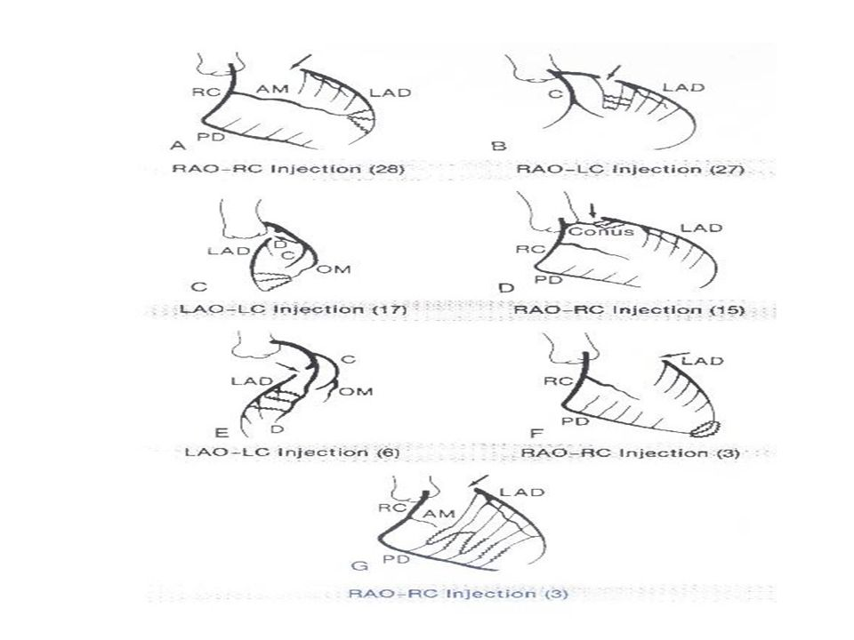 İNTERKORONER ANASTOMOZLAR: LAD ve PDA septal dalları arasındaki anastomozlar. LAD ve sağ koroner arterin konal dalları arasındaki VİEUSSENS HALKASI. R