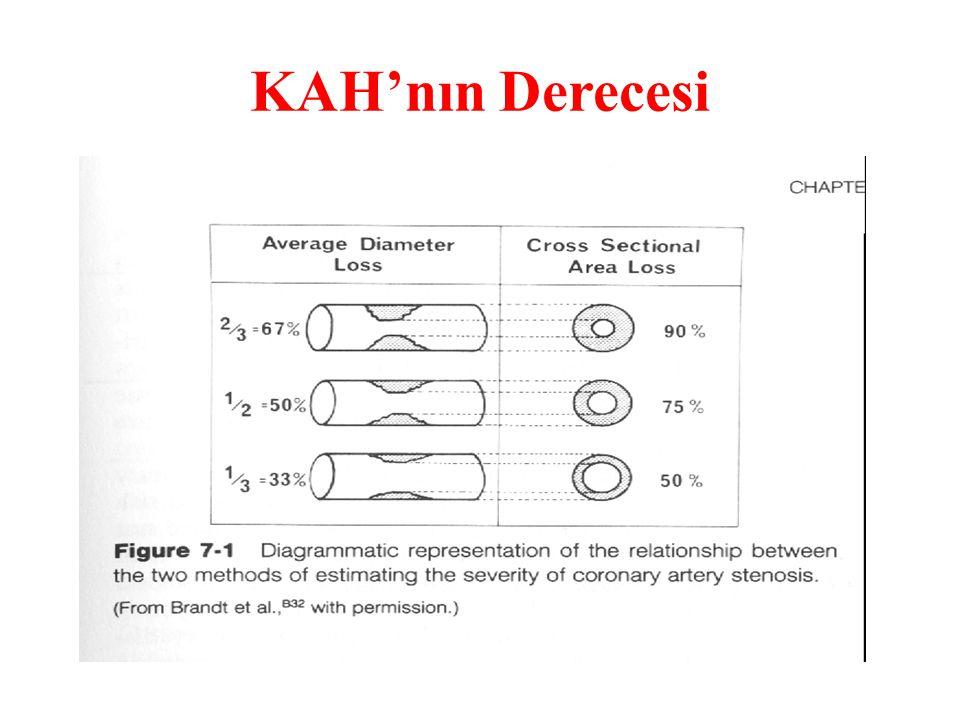 ANJİYOGRAFİK OLARAK ÖNEMLİ KORONER ARTER HASTALIĞI:Stenoz çapı >%70,birden çok koroner arter segmentinde veya sol ana koroner arterin çapında >%50 den