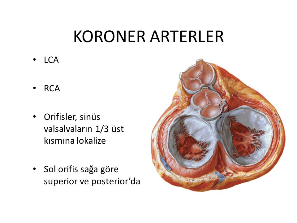 KORONER ARTERLER LCA RCA Orifisler, sinüs valsalvaların 1/3 üst kısmına lokalize Sol orifis sağa göre superior ve posterior'da