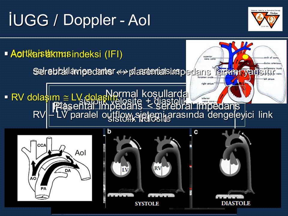 - AoI Doppler sistolik velosite + diastolik velosite sistolik velosite IFI =  Aortik isthmus sol subklavien arter  d.arteriosus  RV dolaşım  LV do
