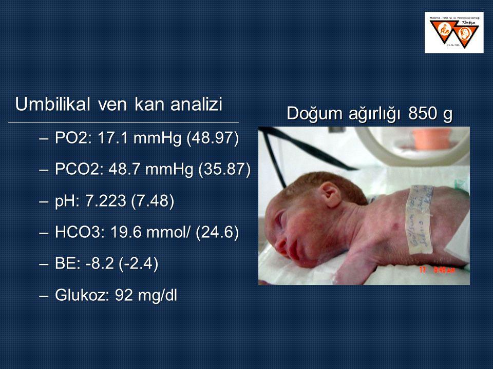 Umbilikal ven kan analizi –PO2: 17.1 mmHg (48.97) –PCO2: 48.7 mmHg (35.87) –pH: 7.223 (7.48) –HCO3: 19.6 mmol/ (24.6) –BE: -8.2 (-2.4) –Glukoz: 92 mg/dl Doğum ağırlığı 850 g