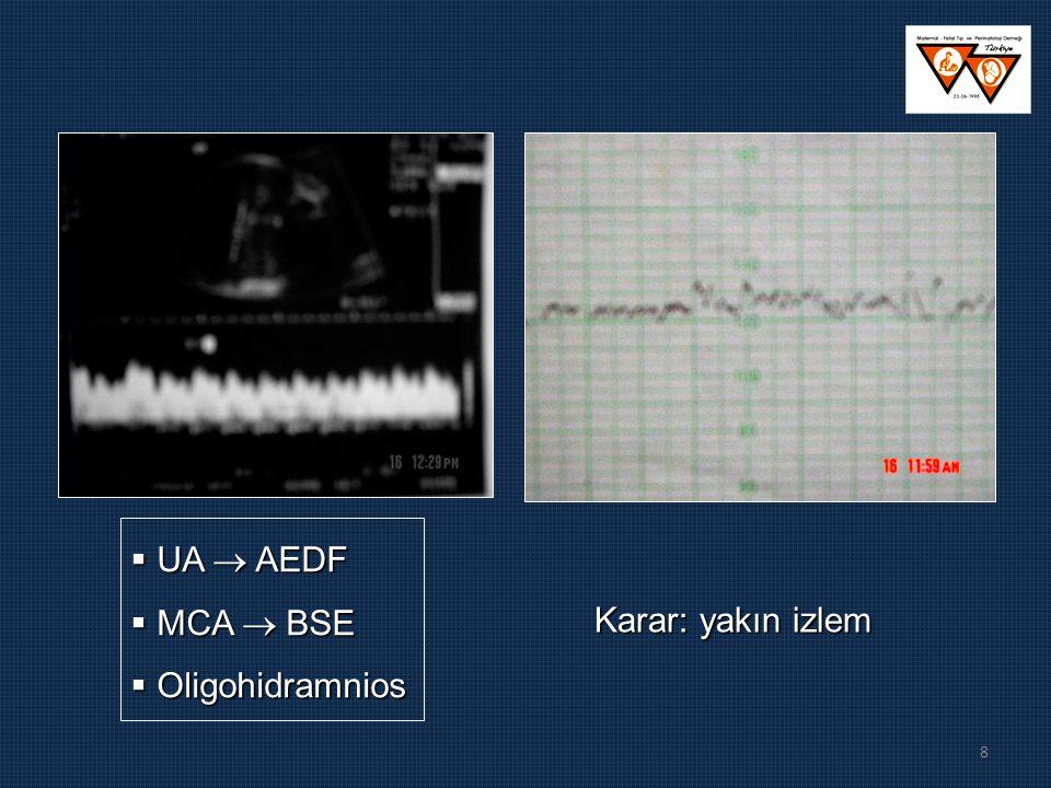 8 Karar: yakın izlem  UA  AEDF  MCA  BSE  Oligohidramnios