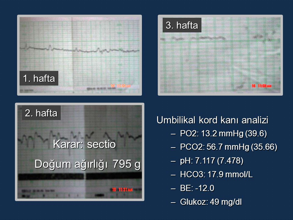 Umbilikal kord kanı analizi –PO2: 13.2 mmHg (39.6) –PCO2: 56.7 mmHg (35.66) –pH: 7.117 (7.478) –HCO3: 17.9 mmol/L –BE: -12.0 –Glukoz: 49 mg/dl 1.