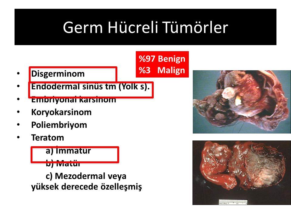 Germ Hücreli Tümörler Disgerminom Endodermal sinüs tm (Yolk s). Embriyonal karsinom Koryokarsinom Poliembriyom Teratom a) İmmatür b) Matür c) Mezoderm