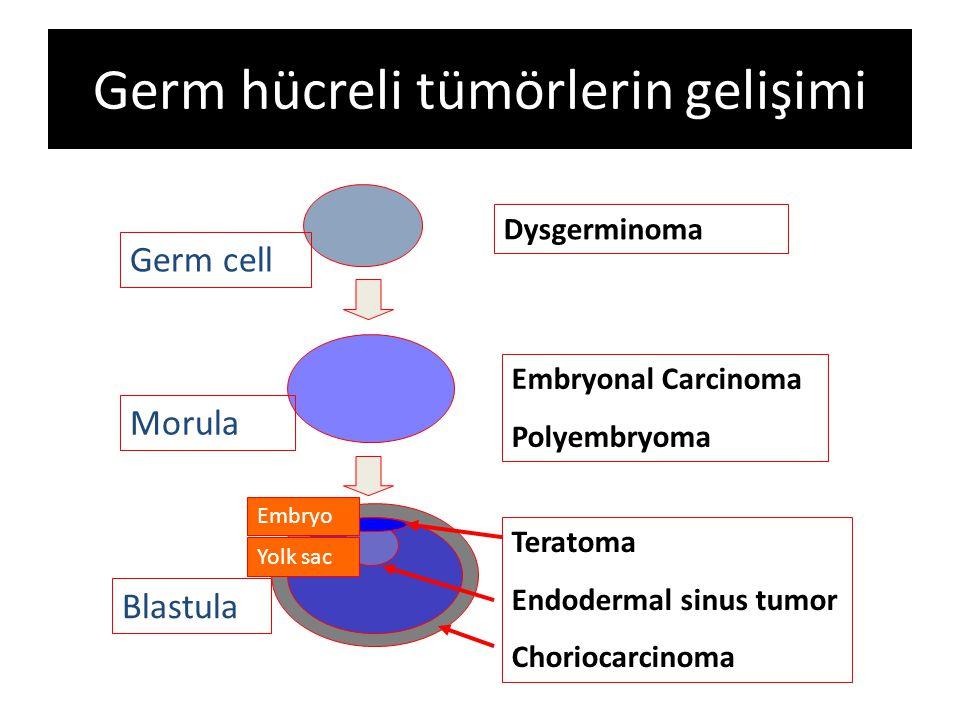 Teratomlar En sık görülen germ hücreli tümörler Matür, immatür Matür kistik teratomlar (dermoid kist) – Malign transformasyon %0.2-2 oranında oluşabilir (squamöz hücreli ca) >10 cm >45 yaş üzeri Hızlı büyüme