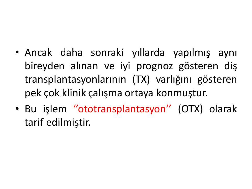 OTX, aynı bireyde bir bölgeden çekilen dişin başka bir bölgeye yerleştirilmesi olarak tanımlanabilir.