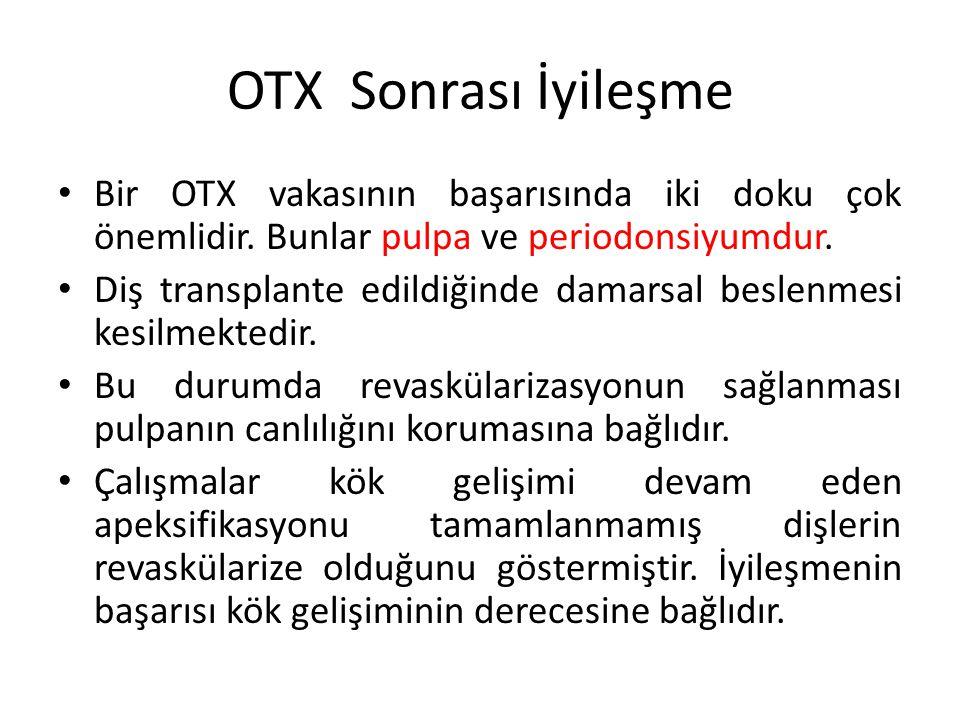 OTX Sonrası İyileşme Bir OTX vakasının başarısında iki doku çok önemlidir. Bunlar pulpa ve periodonsiyumdur. Diş transplante edildiğinde damarsal besl